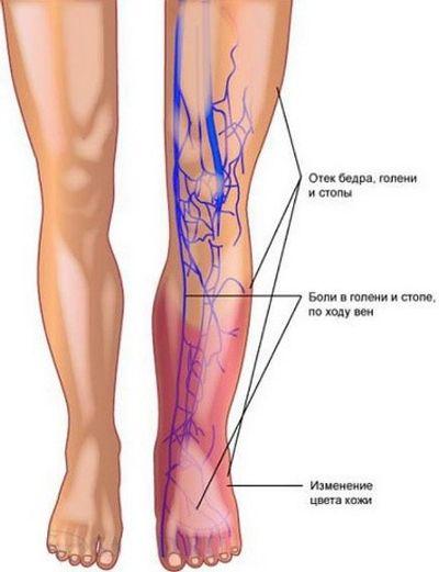 Тромбоз глубоких вен нижних конечностей: причины и симптомы