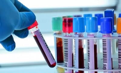 Как правильно сдать кровь на анализ?
