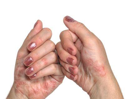 Межпальцевый дерматит