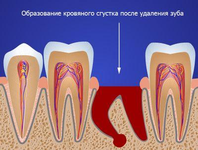 Нагноение после удаления зуба