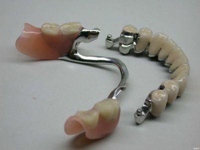 Что такое бюгельный зубной протез?