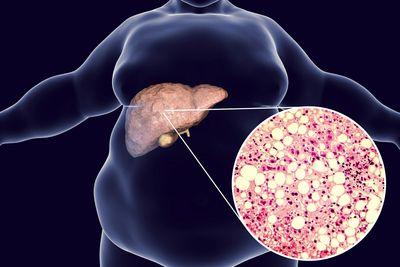 Каковы причины, симптомы и последствия жирового гепатоза печени