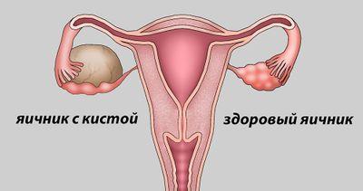 Доброкачественные опухоли и опухолевидные образования яичников