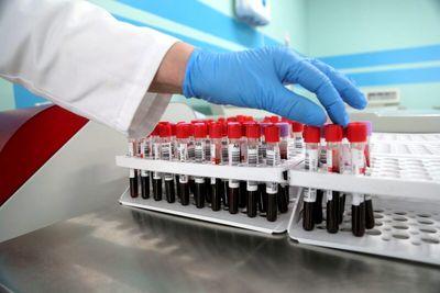 Что нужно знать о своей группе крови?