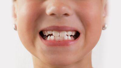 Способы лечения кривых зубов и как исправить кривые зубы без установки брекетов?