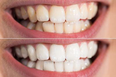 Какой выбрать метод отбеливания зубов: фотоотбеливание, лазерное или химическое?