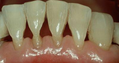 Клиновидный дефект зубов: лечение, симптомы