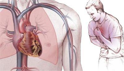 Патогенез и клиническая картина стенокардии