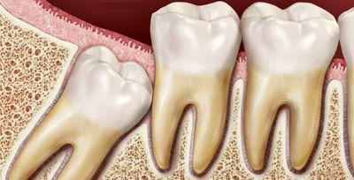 Ретинированные зубы: что это такое, симптомы, диагностика и лечение ретенции