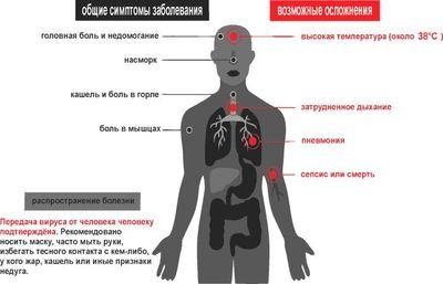 В чем отличие коронавируса от вируса гриппа?