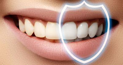 Фторирование зубов: показания и противопоказания к процедуре