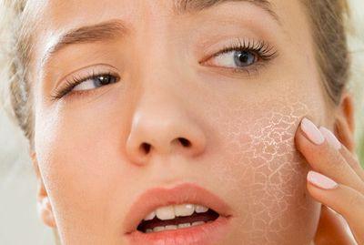Сухость кожи: причины и лечение