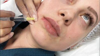 Озонотерапия при лечении герпеса