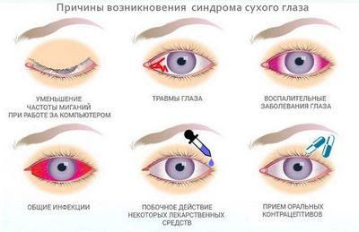 Синдром сухого глаза, лечение и профилактика
