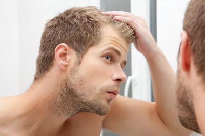 Облысение у мужчин: причины появления, виды и методы лечения