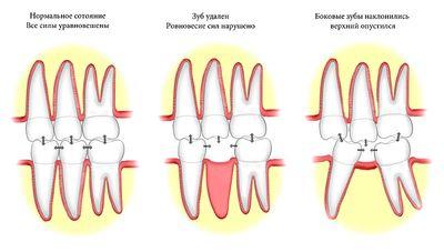 Зачем и как раздвигают зубы под имплант?