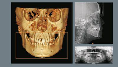 3D томография