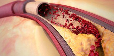 Коронарный атеросклероз симптомы и причины
