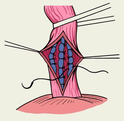 Кровотечение из варикозных вен: причины и факторы возникновения